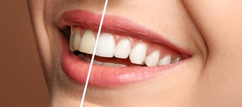 Teeth Whitening Orleans