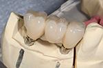 implant dental crown